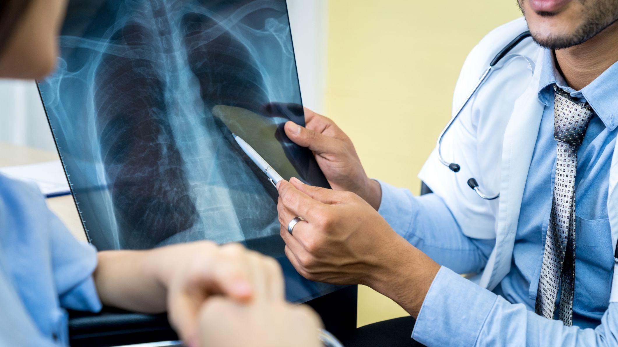 Ученые обнаружили скрытые повреждения легких у пациентов с долгим ковидом