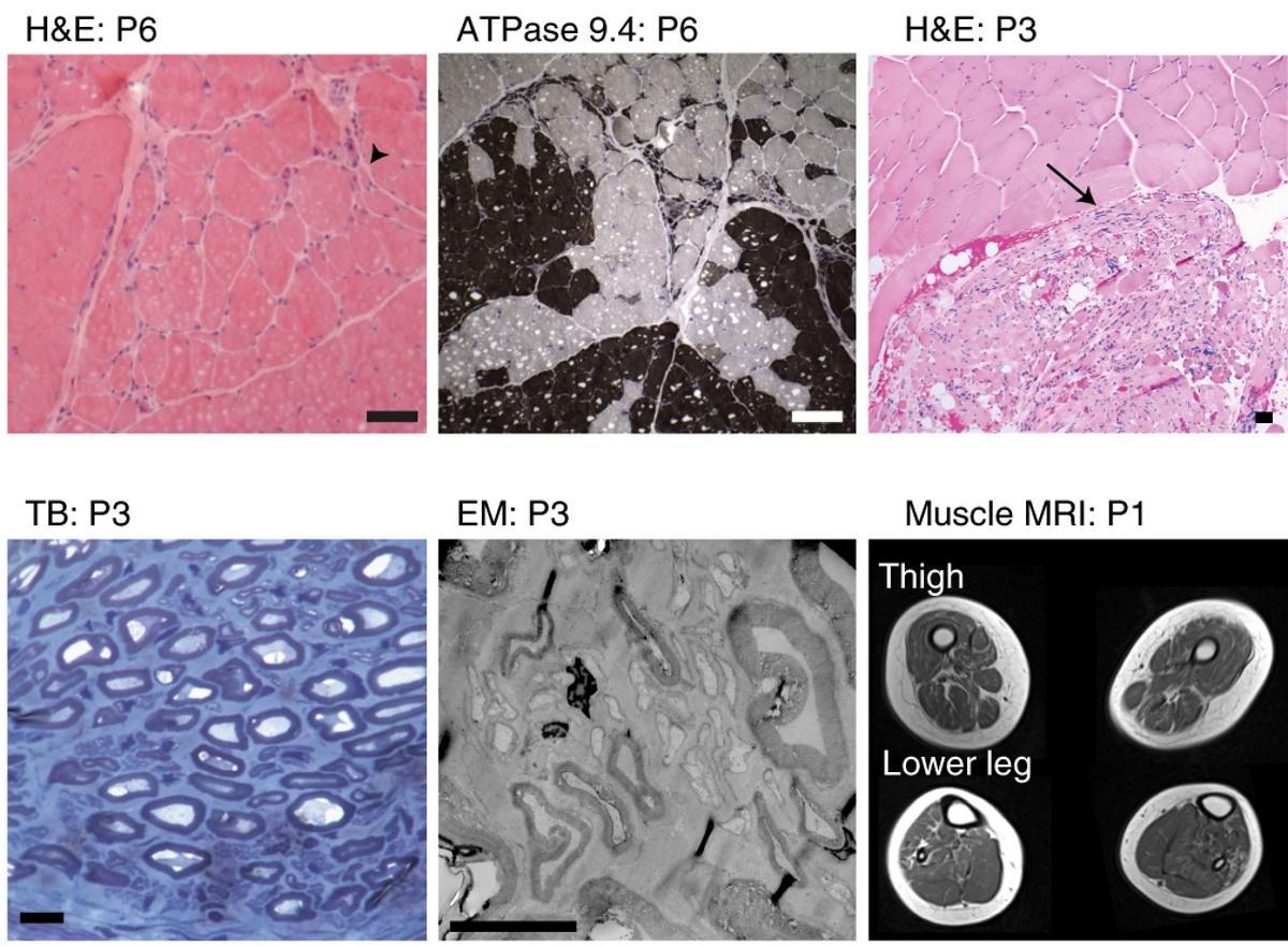 Дефект в липидах нервной ткани приводит к боковому амиотрофическому склерозу?