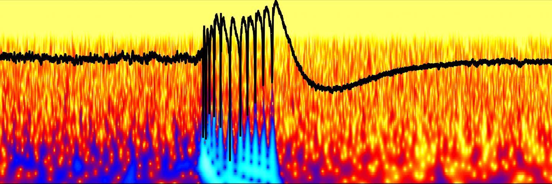 Новые тормоза нейронов помогут справиться с аутизмом и эпилепсией