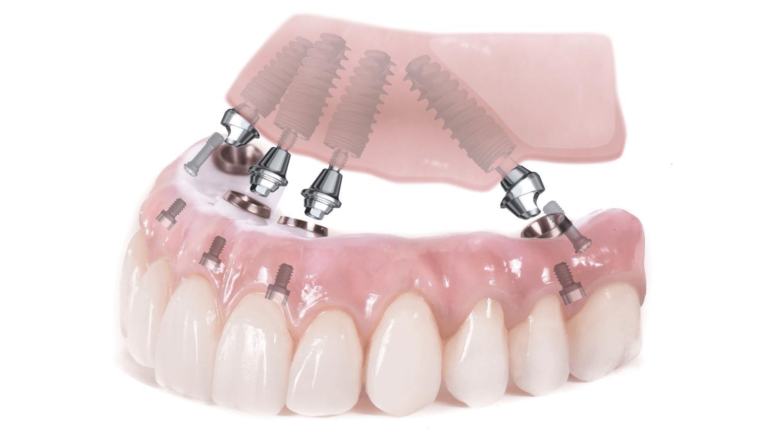 Как подготовиться к имплантации зубов и что нужно сделать для снижения риска отторжения имплантата