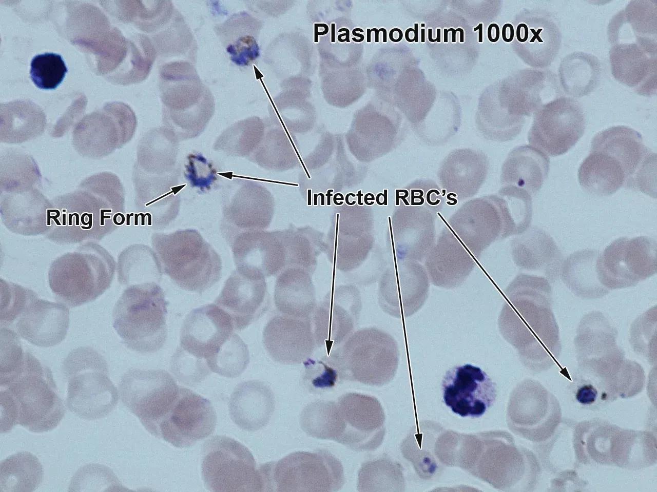 мРНК-вакцина от малярии показала 88-процентную эффективность на мышах