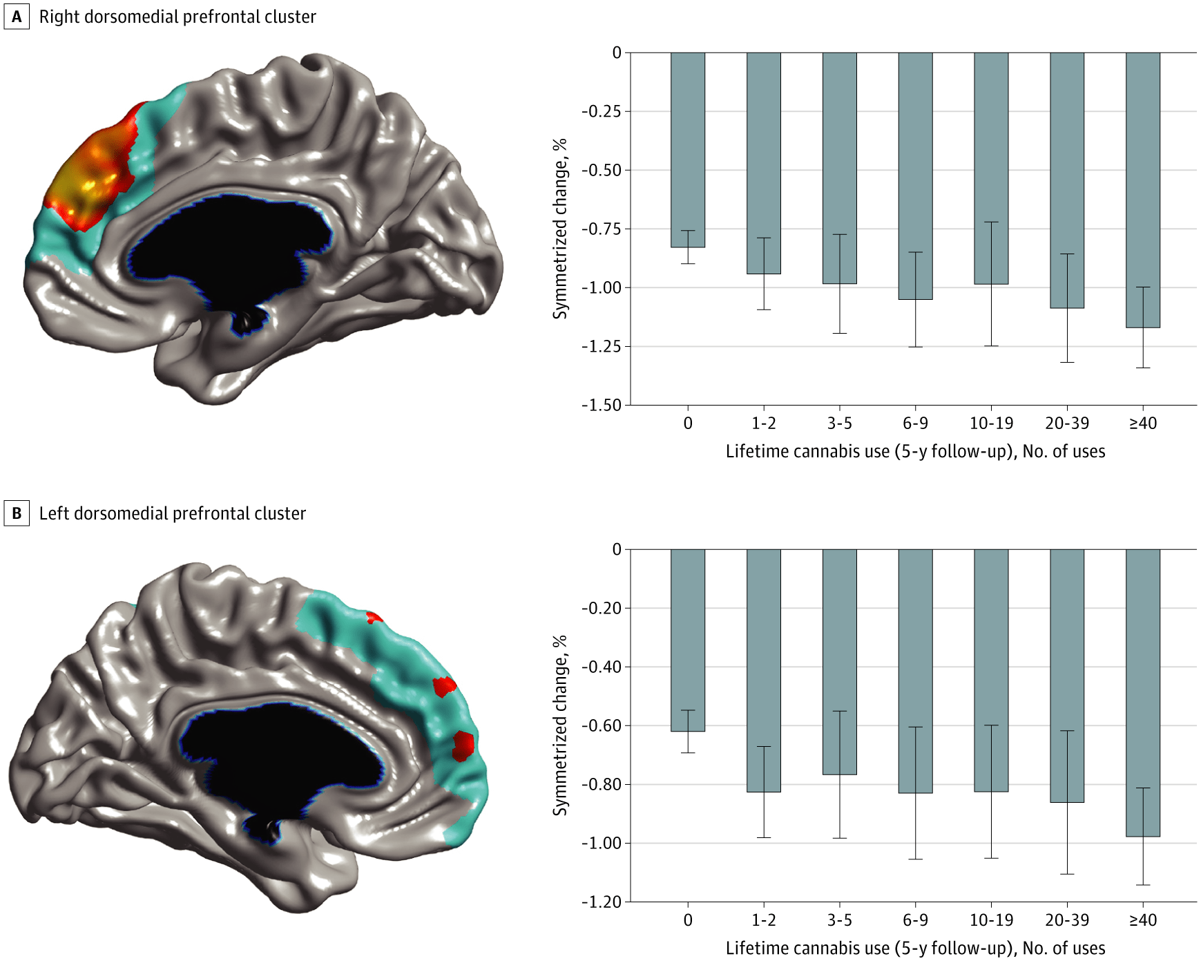 Марихуана ускорила истончение коры головного мозга подростков