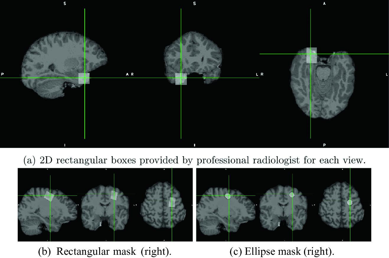 Нейронная сеть помогает ученым выявлять причины эпилепсии