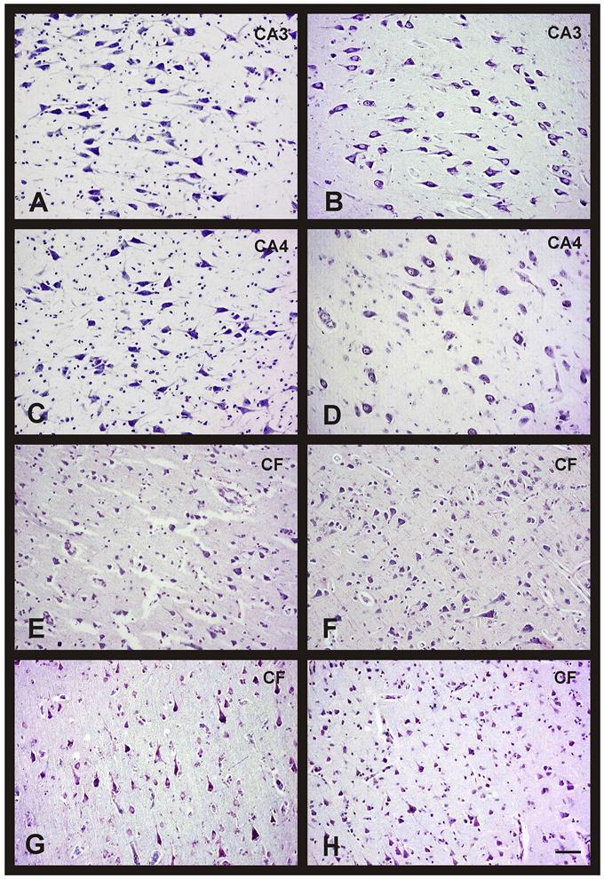 Мозг женщин и мужчин при старении и болезни Альцгеймера