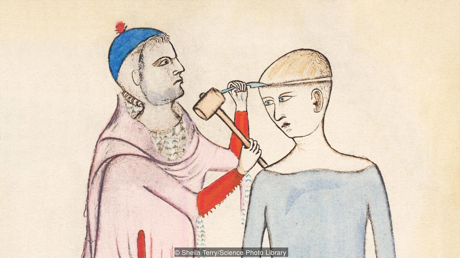Трепанация черепа в средневековой Франции оказалась методом лечения неврологических расстройств