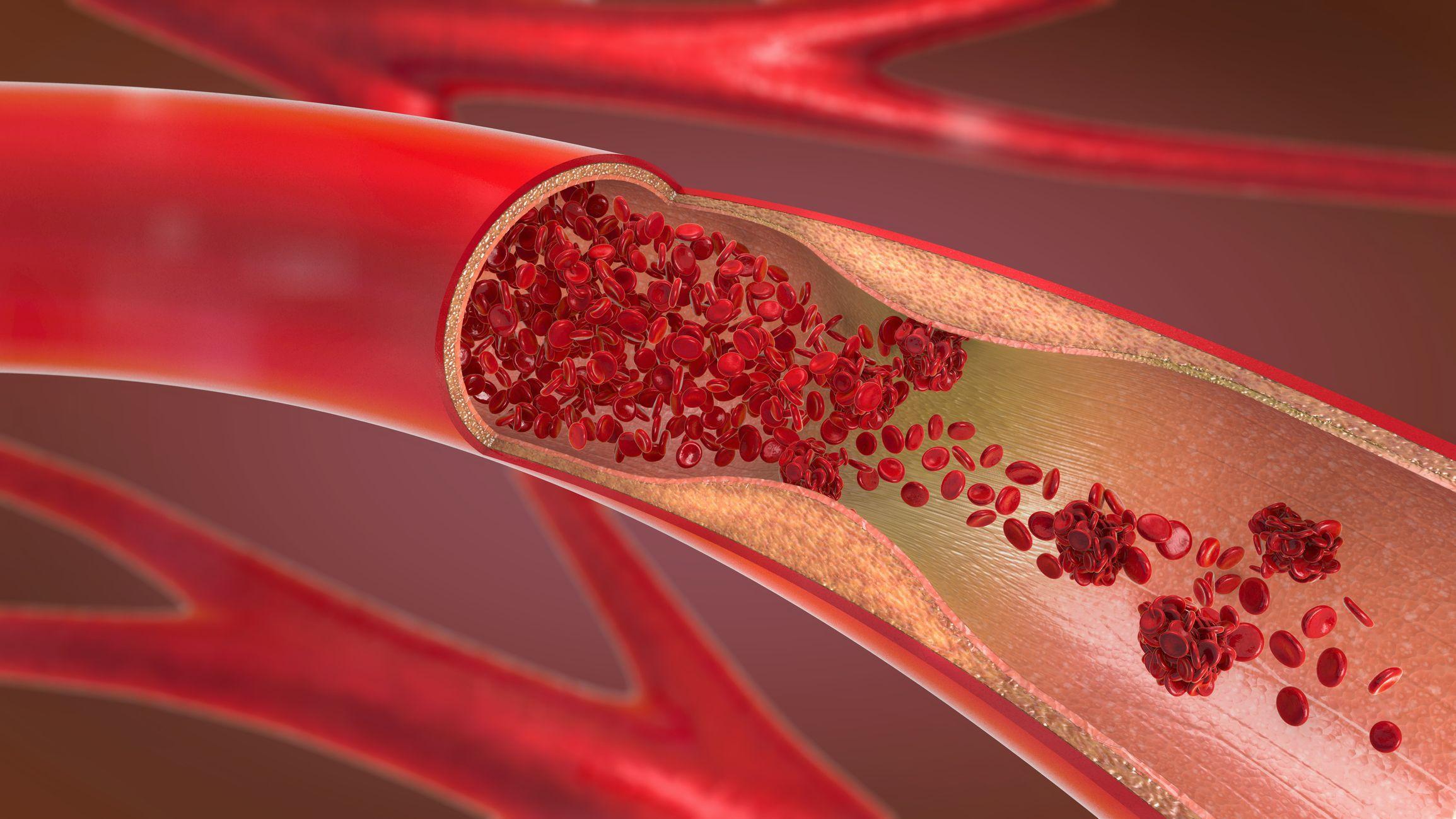 Тромбы у тяжелобольных Covid-19 объяснили аномальным ответом антител