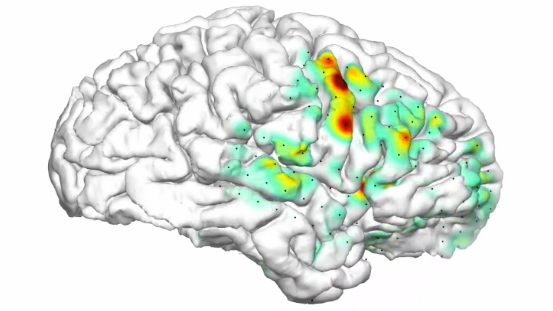 Трехмерная карта показала область мозга, ответственную за эпилептический приступ