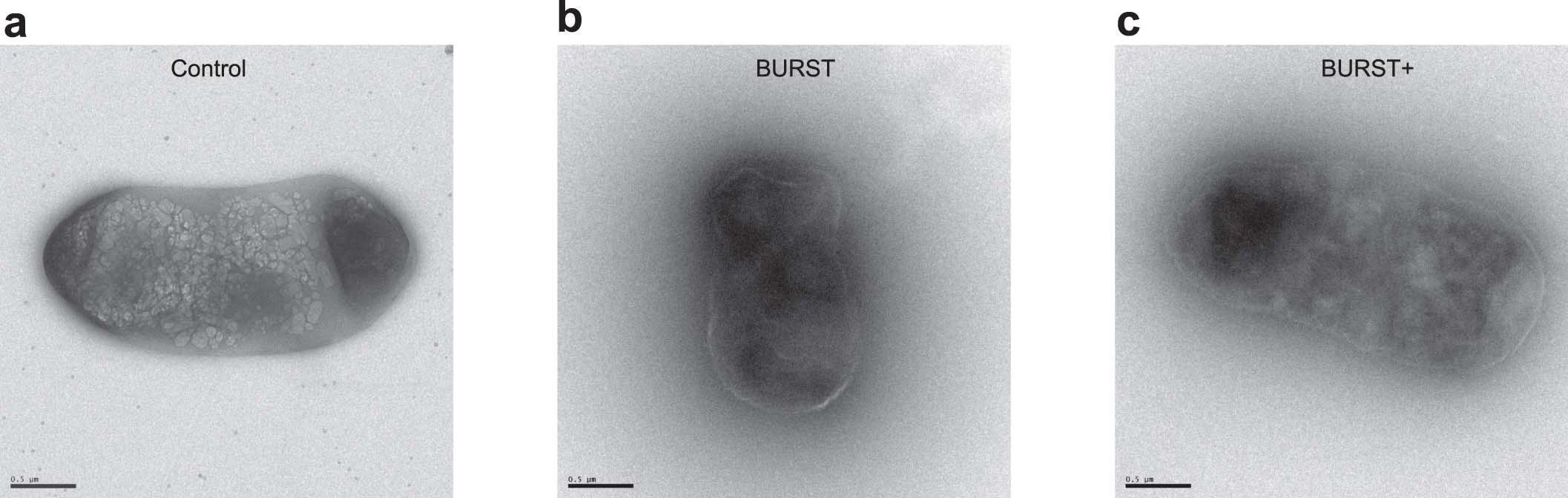 Взрывающиеся от ультразвука микропузырьки воздуха помогли «увидеть» экспрессию генов в клетках