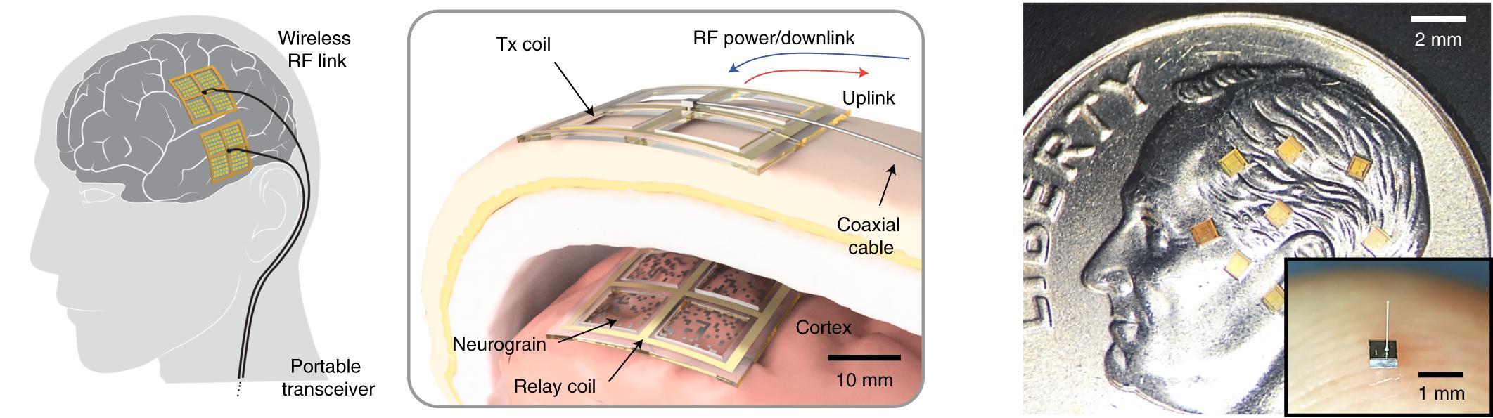 Нейрозёрна — сетевые нейрочипы испытаны на животной модели