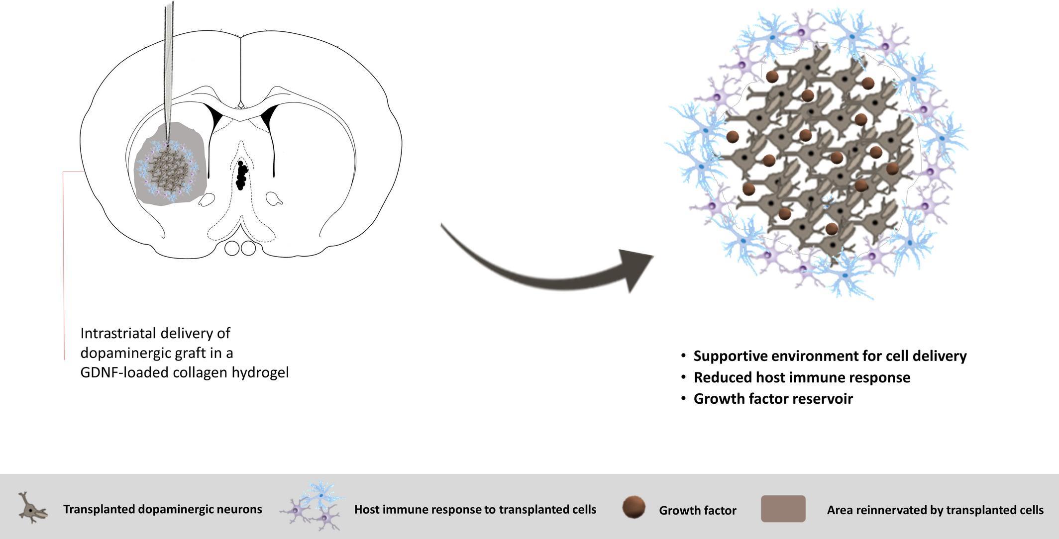 Болезнь Паркинсона можно вылечить, заявляют создатели необычного геля