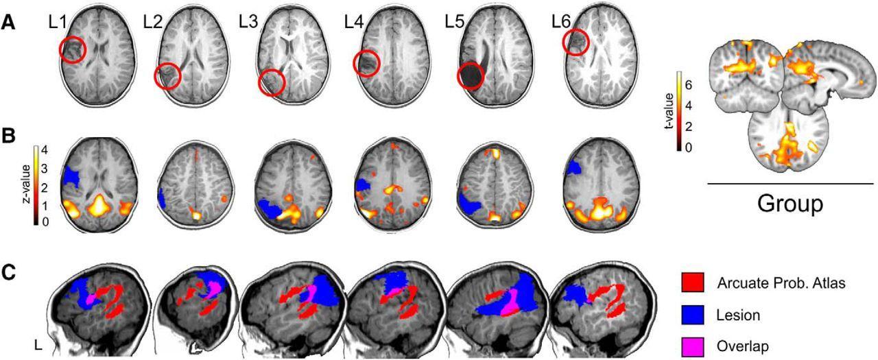 Правое полушарие детского мозга взяло на себя языковые функции после повреждения левого
