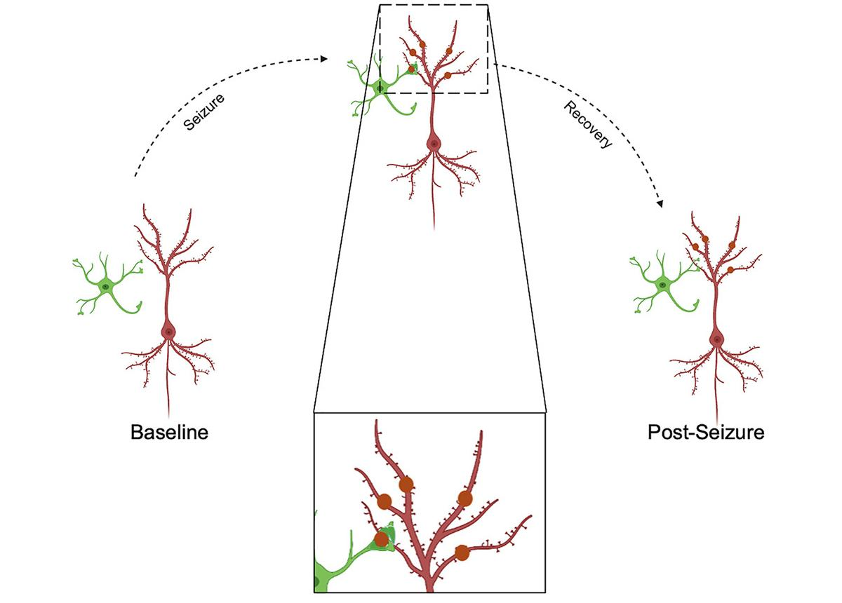 Микроглия помогает «исцелять» нейроны