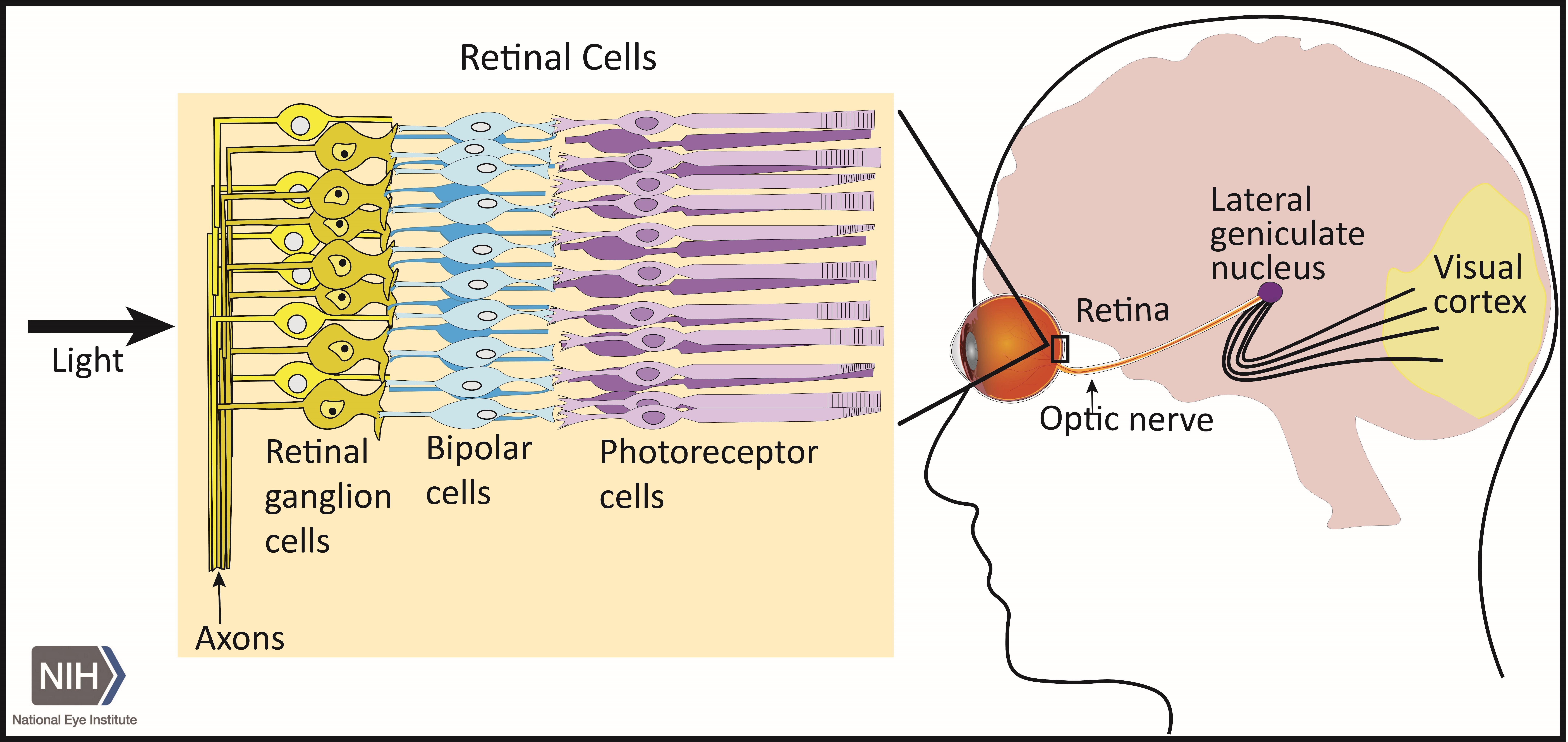 Исследователи нашли способ сохранять зрение при глаукоме