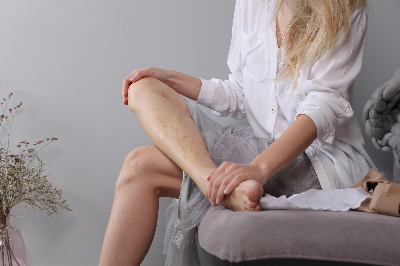 Варианты лечения варикозного расширения вен