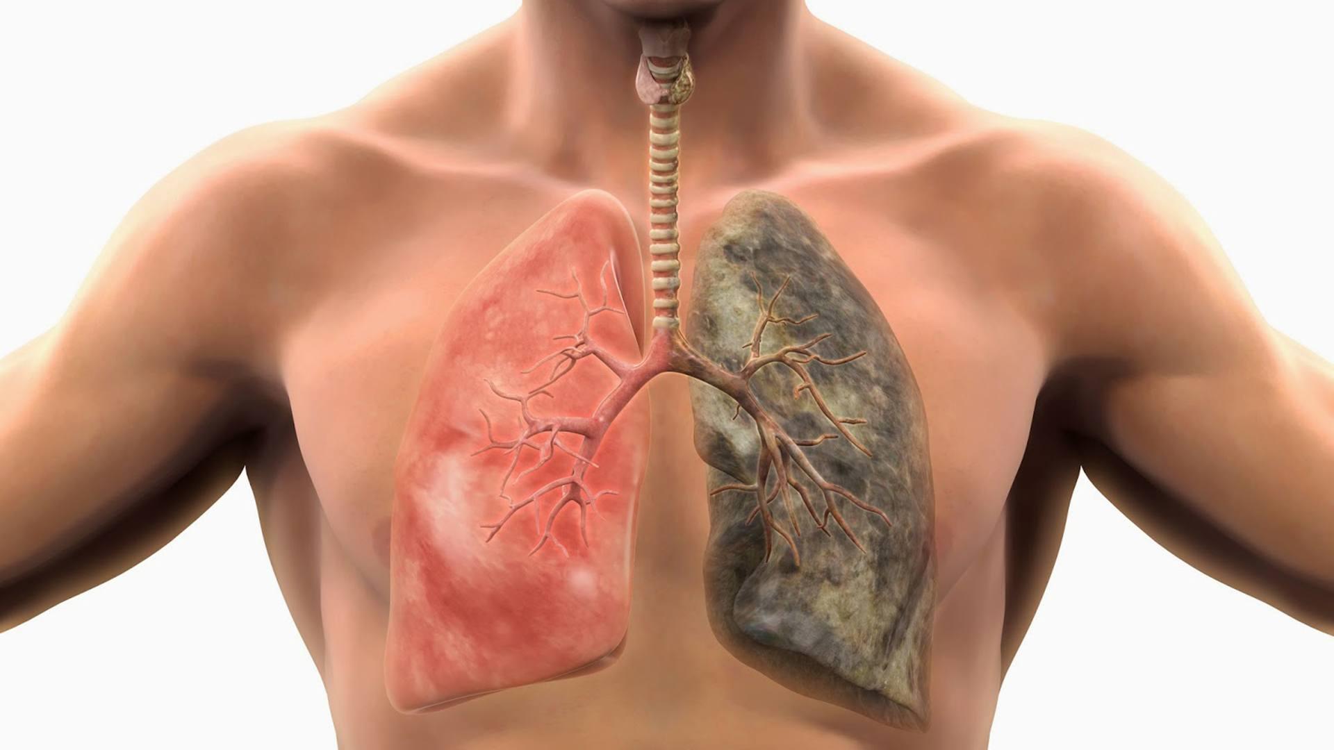 Рак лёгких у некурящих происходит от естественных мутаций