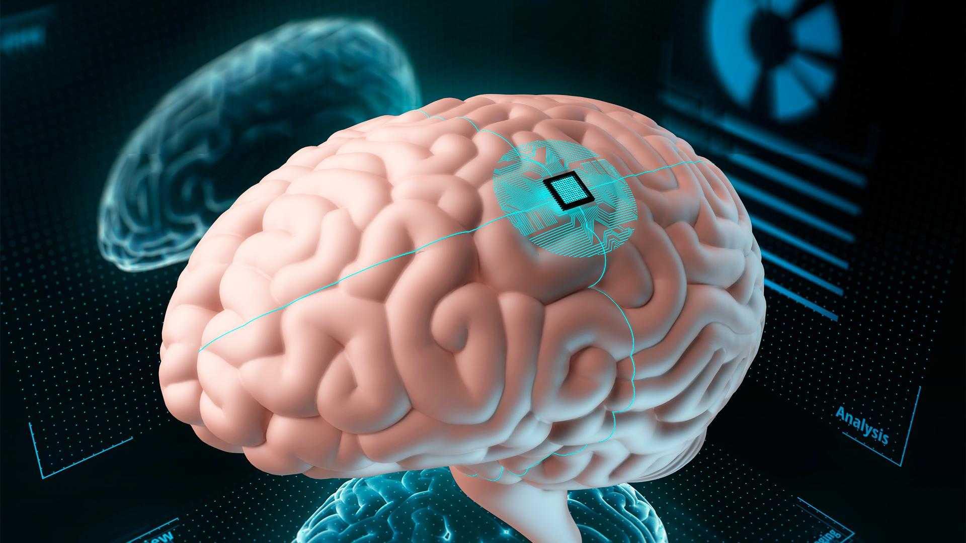 Мозговой имплант частично вернул женщине зрение