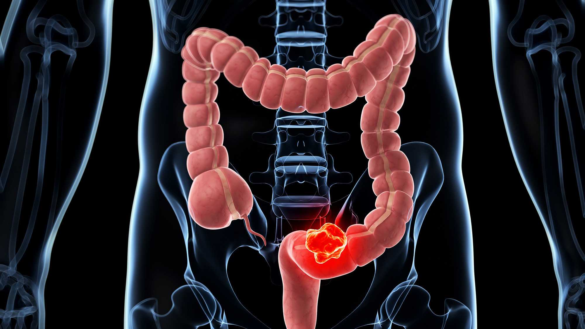 Обнаружена связь между бактериями полости рта и раком кишечника