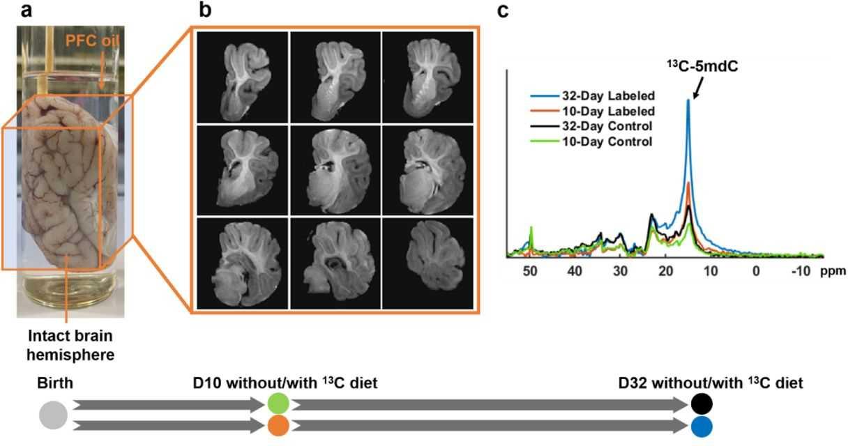 Эпигенетическая МРТ: как измерить активность генов в живом мозге